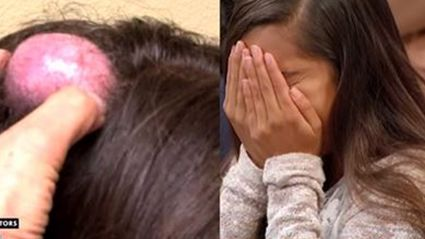 Woman Gets Giant 20-Year-Old Cyst On Her Head Popped On Live TV