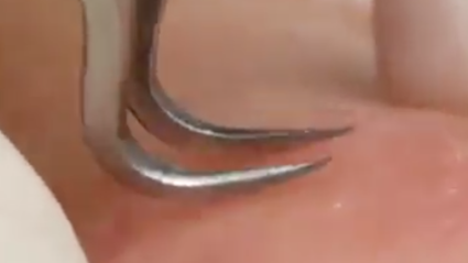 The Internet Is Going Crazy Over This EPIC Blackhead Removal Video