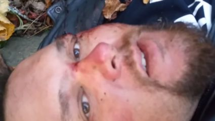 Guy Films Final Words As He Lays Dying After Motorbike Crash
