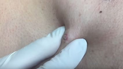 "The best of Dr. Pimple Popper's ""Punch Removals"""
