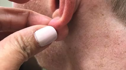 Dr. Pimple Popper explodes a massive earlobe for your enjoyment!