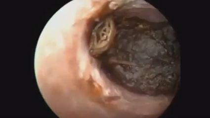 You won't believe what is removed from this ear